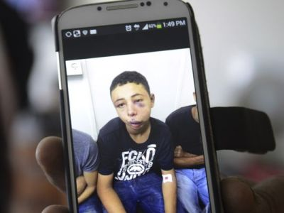 Suha Abu Khdeir, mother of Tariq Abu Khdeir, a U.S. citizen who goes to school in Tampa, shows a mobile phone photo of Tariq taken in a hospital after he was beaten and arrested by the Israeli police. (Mahmoud Illean, AP)
