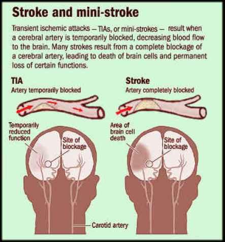 stroke-ministroke