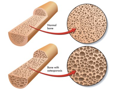 osteoporosis_reduced