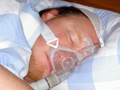 sleep-apnea-3
