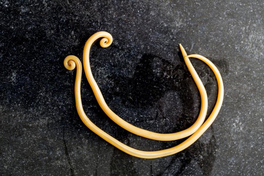 cacing gelang Ascaris lumbricoides