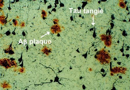 Real amyloid beta plaques and tau protein tangles. Source: Dr. Dale Bredesen