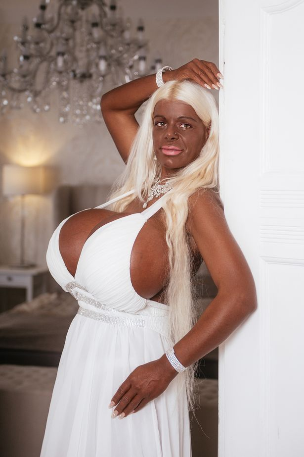 White German Model Falls On Surgery Amp Tanning Injections