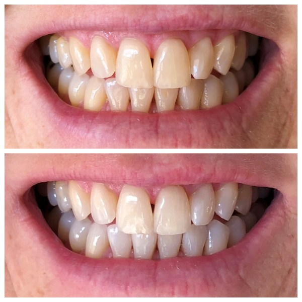 My whiter, brighter smile after using at at-home teeth whitening kit from Smile Brilliant.