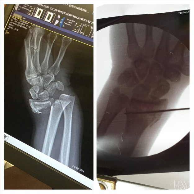 Galleazi fracture