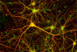 neuroni credit: bio.sci.osaka-u.ac.jp