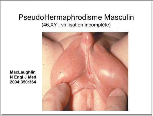 Pseudo hermaphrodisme masculin