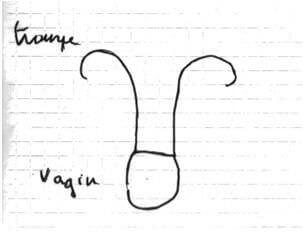 Représentation de ses organes génitaux par une vaginique (coll. N. Dudoret)