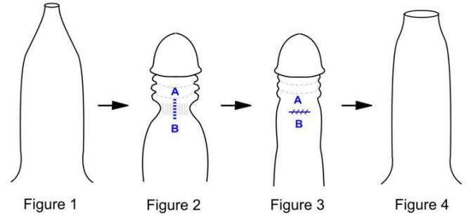 Traitement du phimosis : Fig 1. Pénis avec un prépuce étroit rendant le décalottage difficile Fig 2. Verge décalottée avec l'anneau fibreux du prépuce enserrant la verge Fig 3. Incision verticale de l'anneau fibreux Fig 4. Pénis après posthectomie.