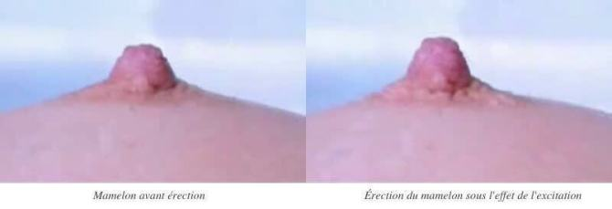 erection_mamelon