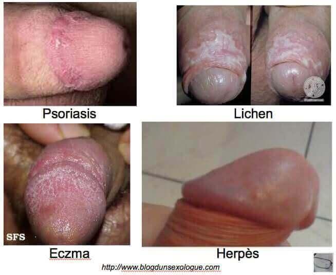 lesions-gland