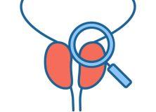 Des éjaculations fréquentes protègeraient du cancer de la prostate
