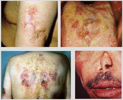 Tableau clinique de la syphilis tertiaire