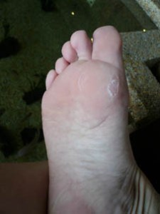 They ate off my blister!!