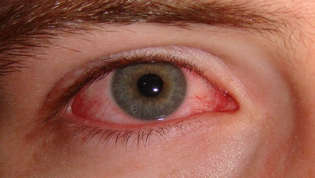 X cure eye infectionsX home remedies for eye infectionsX treat eye infectionsX how to treat cure eye infection