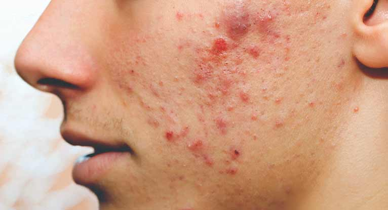 Best Home Remedies To Get Rid Of Pimples