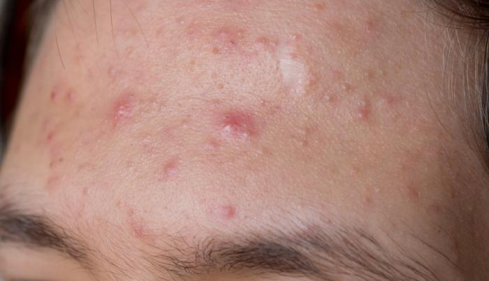 How To Treat For Cystic Acne