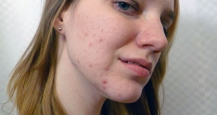 Ways To Reduce Redness From Acne Scars