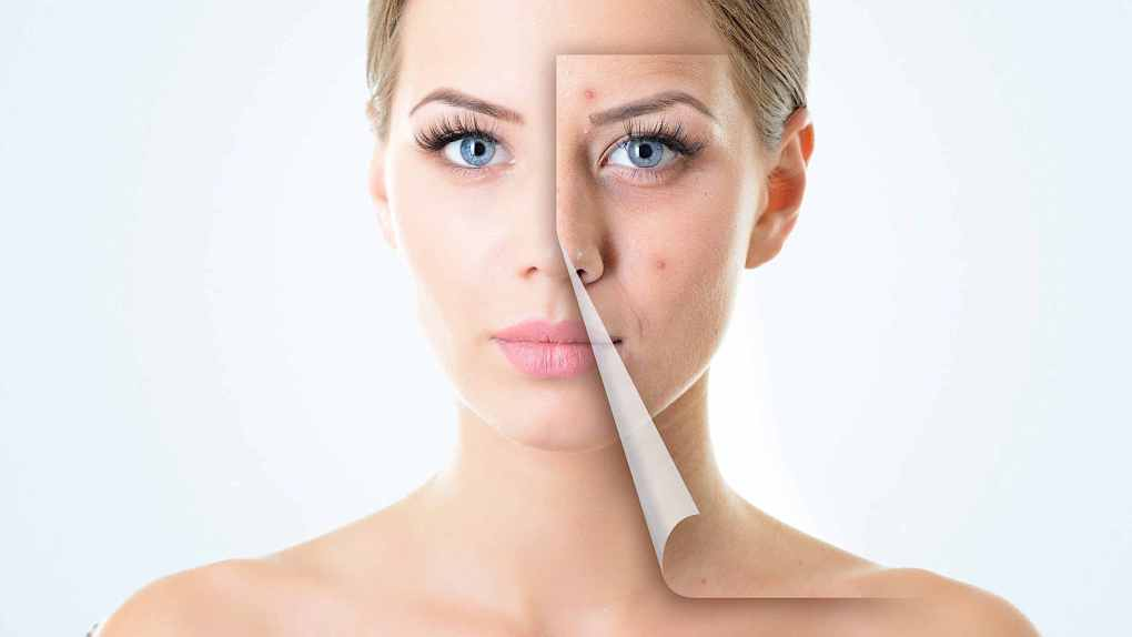 Herbal Remedies For Acne Treatment