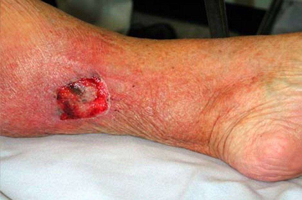 Symptoms For Bacterial Infections