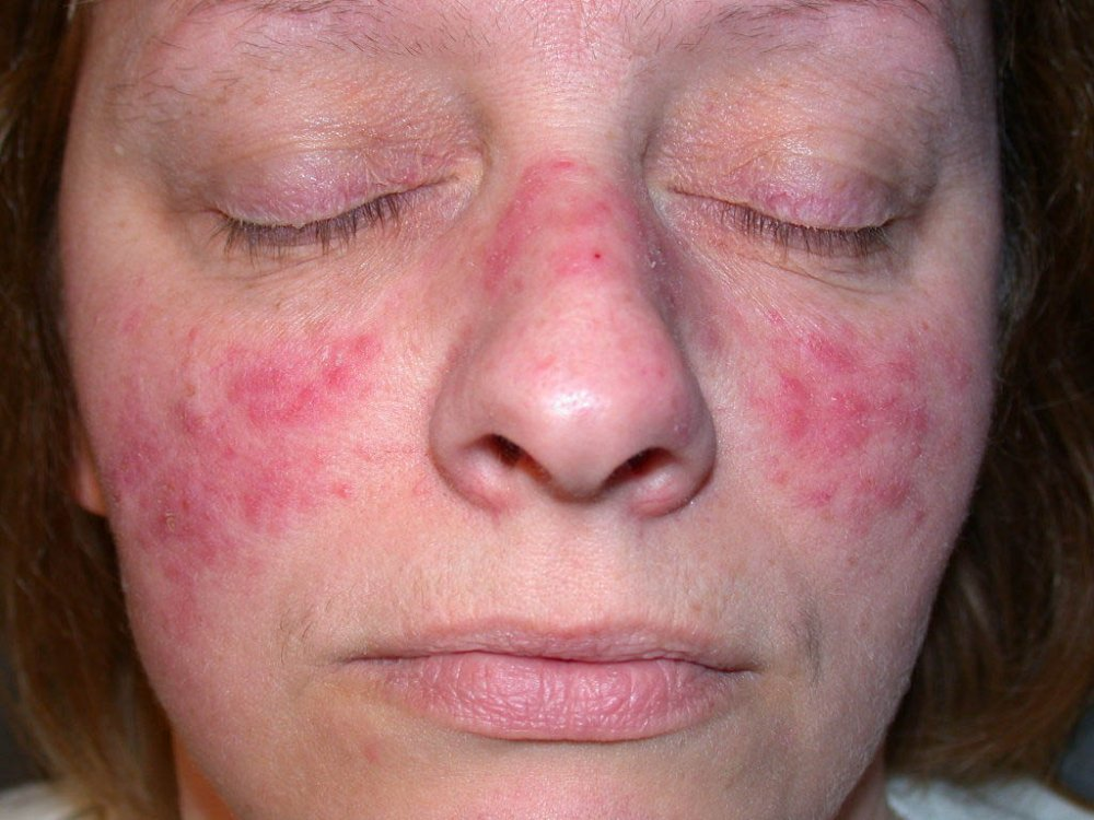 Rosacea Causes, Symptoms and Treatments
