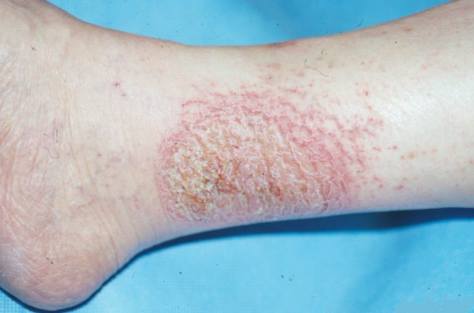 Best Natural Remedies For Eczema
