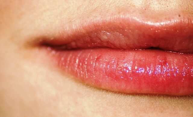 7 Effective Home Remedies For Angular Cheilitis
