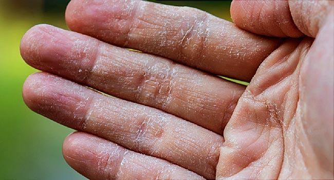 Home Remedies For Dry, Cracked Hands