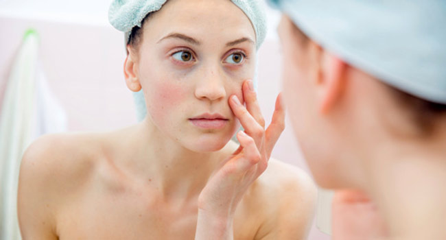 how to remove pigmentation
