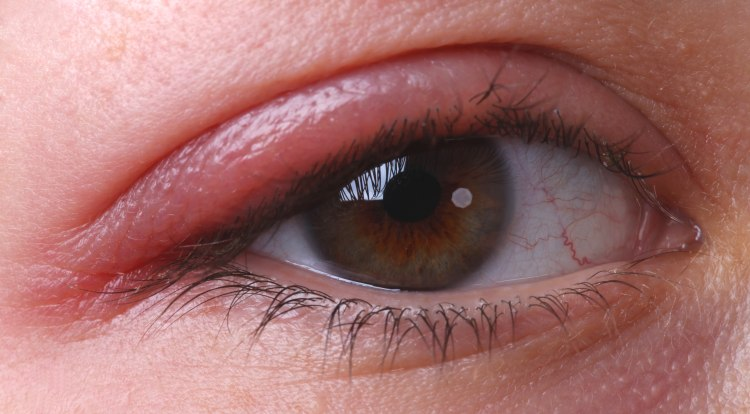 5 Home Remedies For Blepharitis