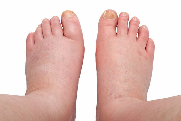 11 Effective Natural Home Remedies For Swelling