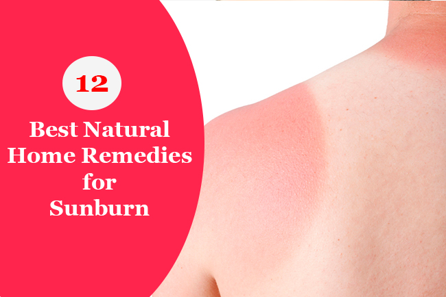 12 Best Natural Home Remedies for Sun Burn