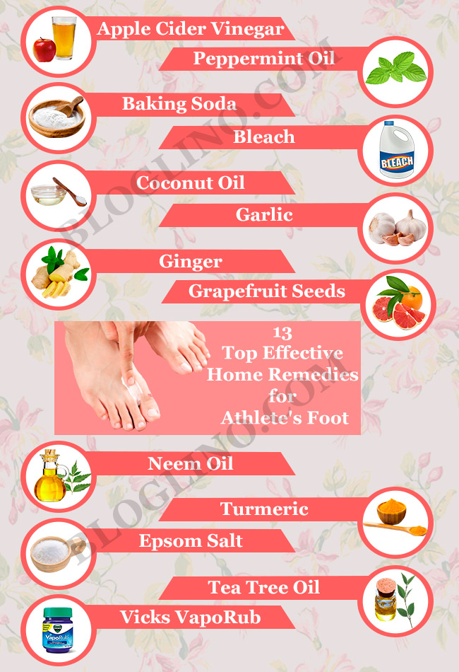 13-top-effective-home-remedies-for-athlete-foot