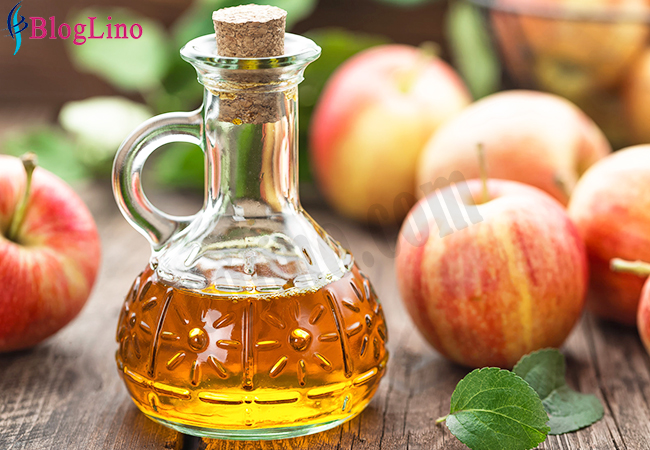 Apple Cider Vinegar to Treat Headache