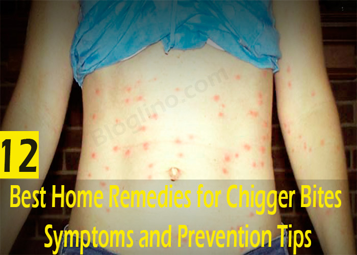 12-Best-Home-Remedies-for-Chigger-Bites---Symptoms-and-Prevention-Tips