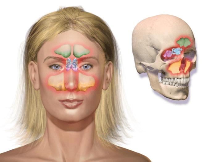 Infiammazione dei Seni Paranasali: Sinusite