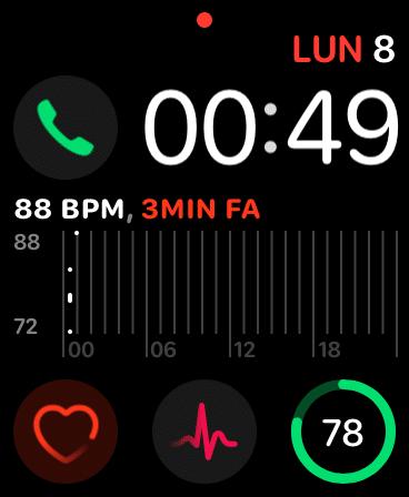 App Battito e ECG come Complicazioni sull'Apple Watch
