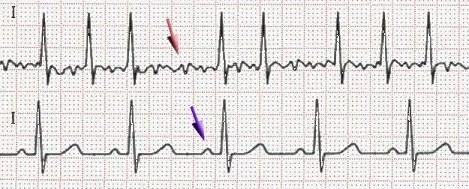 Elettrocardiogramma di fibrillazione atriale (sopra) e di ritmo cardiaco normale (sotto)