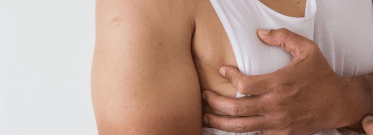 Липосакция груди у мужчин 1