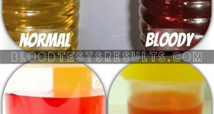 colors of bloody urine in kids