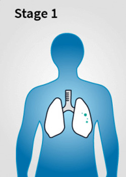 Mesothelioma Stage 1 - Stages of Mesothelioma Disease