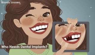 Who Needs Dental Implants