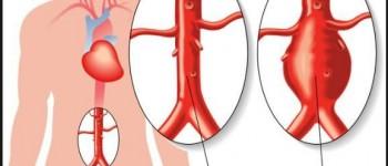 Aneurisma o steno ostruzione dell'aorta addominale