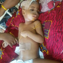 CLARION CALL: 3-year-old girl solicits 3.5m to regain sense organs