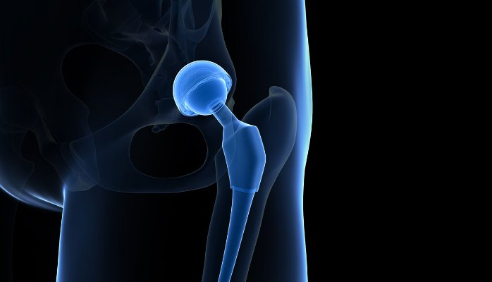 Hip replacement surgery = interview advice