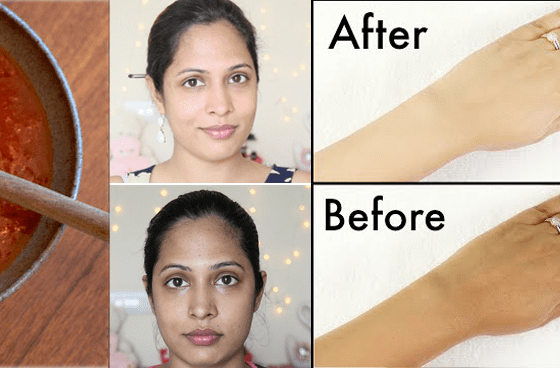 How To Get rid of Sun Tan Naturally From Face & Arms 1
