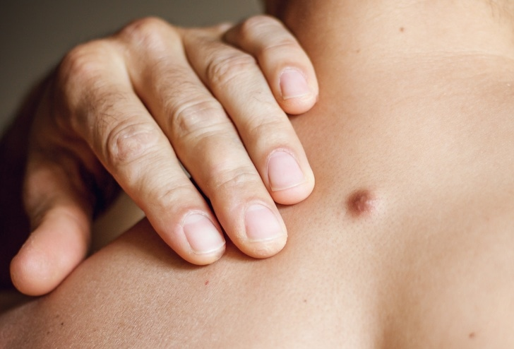 4 Best Reasons With Lump Growth That Explain You Need To Visit Doctor As Soon As Possible 1