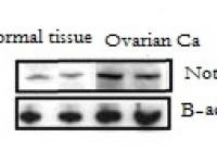 Ovarian cancer Notch1
