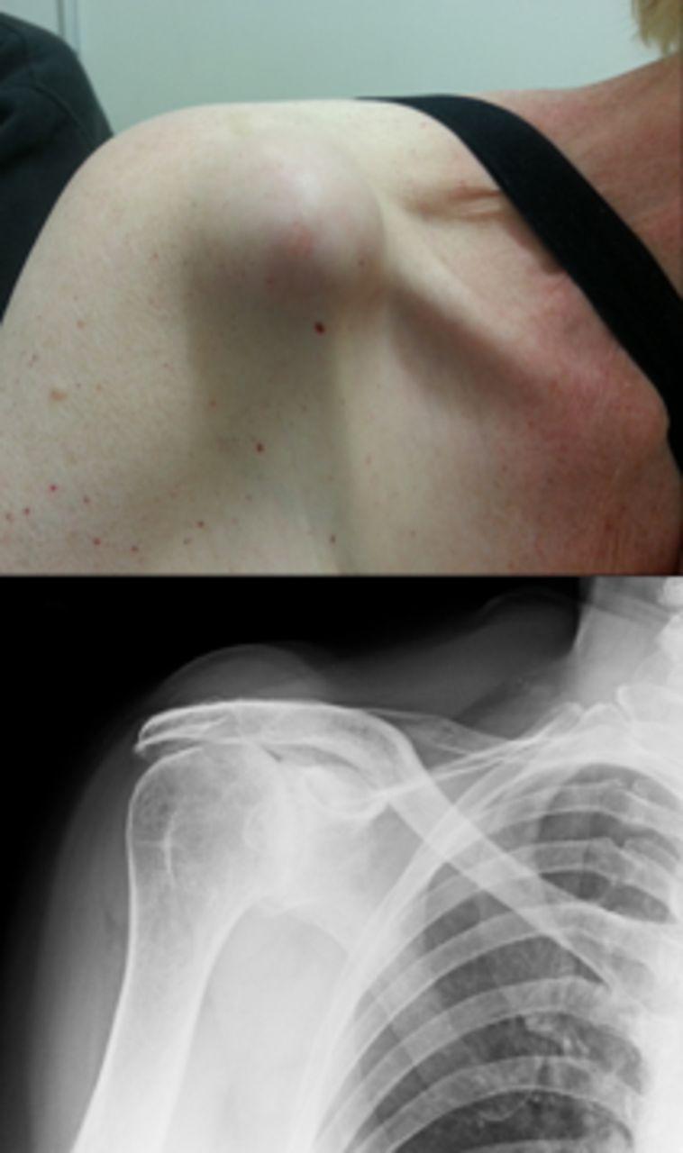 Arthroscopy Synovial Cyst