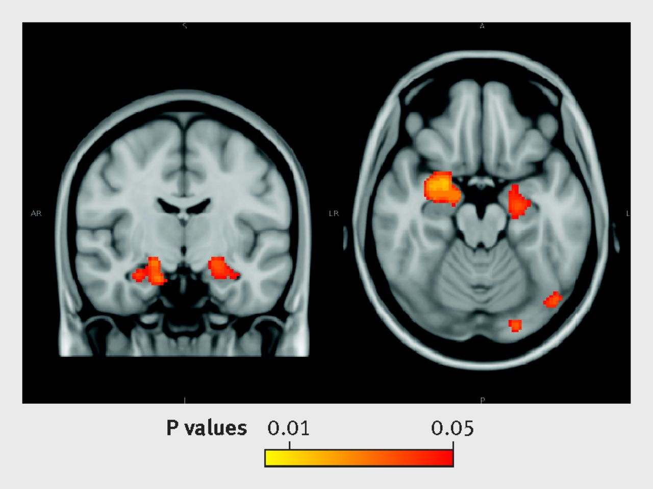 Moderate Alcohol Consumption As Risk Factor For Adverse Brain Outcomes And Cognitive Decline
